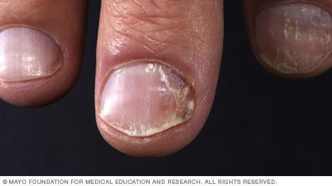 Image of nail psoriasis
