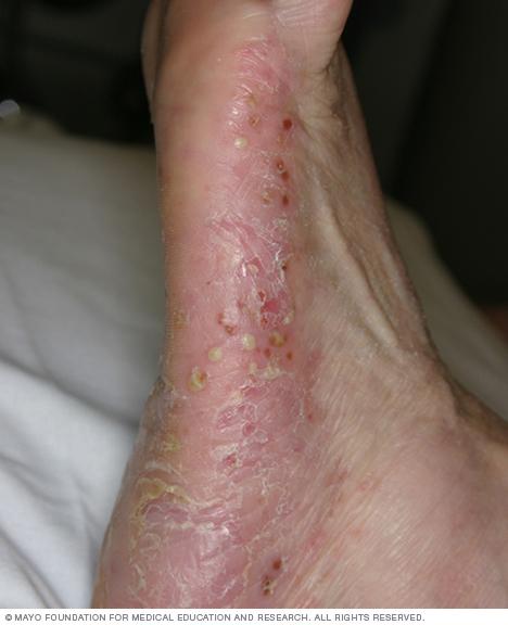 Image of pustular psoriasis