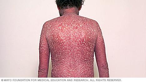 Image of erythrodermic psoriasis