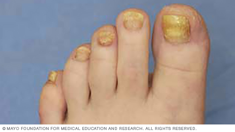 Image of thickened toenails