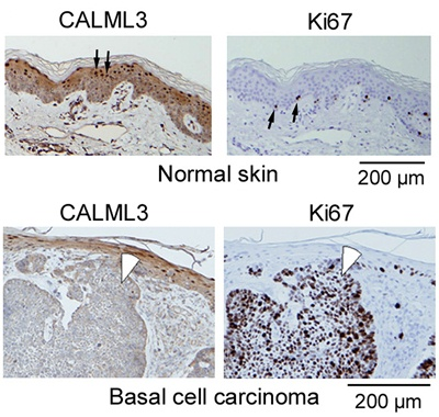 CALML3 localization in normal epidermis and invasive carcinoma.