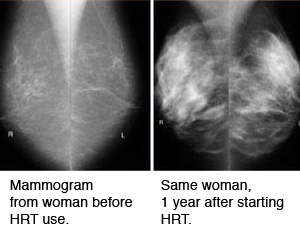Example of a change that can occur in some women when they take hormones for postmenopausal symptoms.