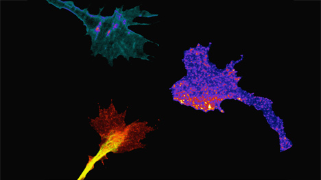 Research Identifies Complex Of Neurons >> Neuroregeneration Center For Regenerative Medicine Mayo Clinic