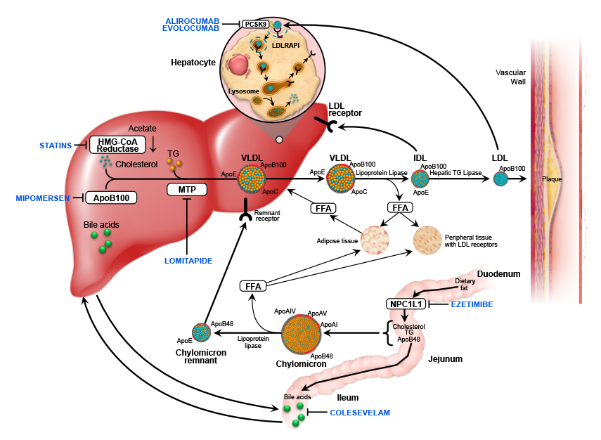 Image result for Familial hypercholesterolemia