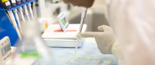 Photograph showing the hands of a researcher working in the lab in the Mayo Clinic Ovarian Cancer SPORE