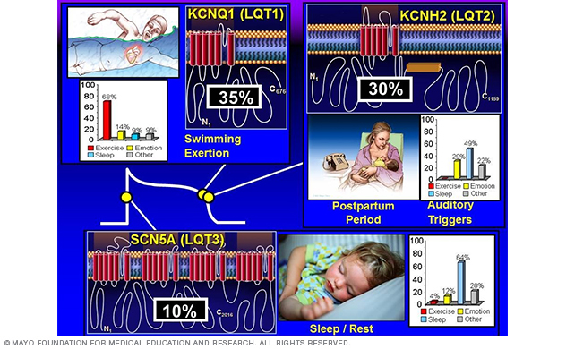 Image showing genotype-phenotype correlations in long QT syndrome