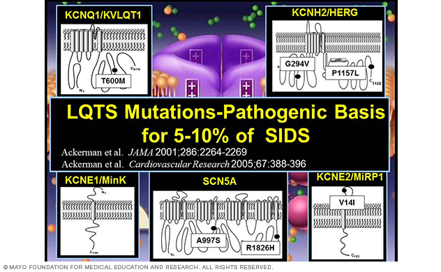 Image showing cardiac channel mutations in SIDS