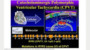Image showing catecholaminergic polymorphic ventricular tachycardia