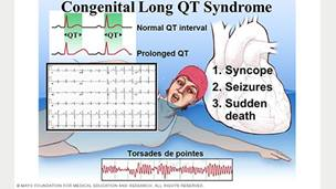 Image showing clinical characteristics in congenital long QT syndrome