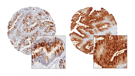 Ovarian tumor specimens showing SPINK1 staining.