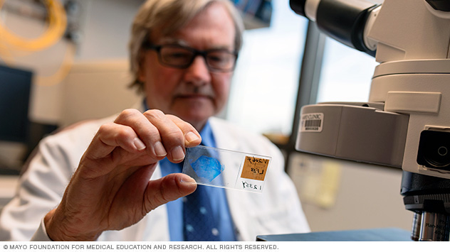 Anthony J. Windebank, M.D., examines a microscope slide in the Regenerative Neurobiology Laboratory at Mayo Clinic's campus in Minnesota.