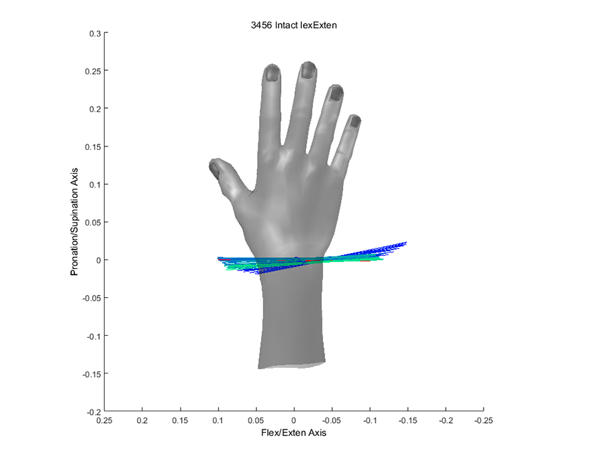 Kinematic data scan at Mayo Clinic reveals the motion patterns of joints of the hand.