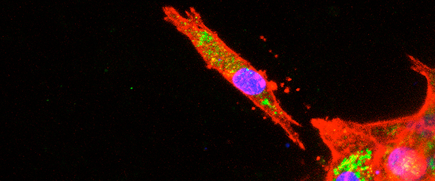 Image showing a model of cancer metastasis in the Razidlo Cell Biology of Metastasis Lab