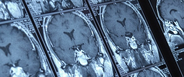 The Department of Neurology at Mayo Clinic is focusing research on neurological diseases such as MS, ALS and Parkinson's disease.