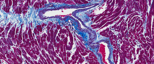 Microscopic fibrosis from Dr. Fairweather's lab at Mayo Clinic