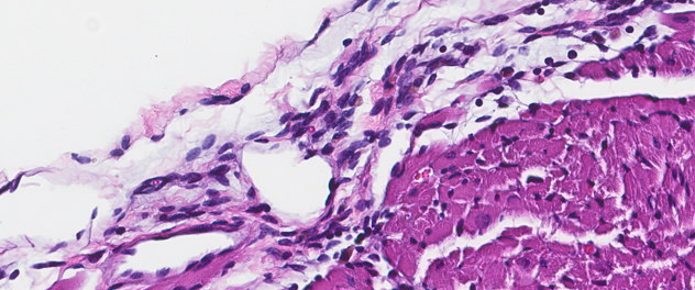 Microscopy image showing pericardial inflammation