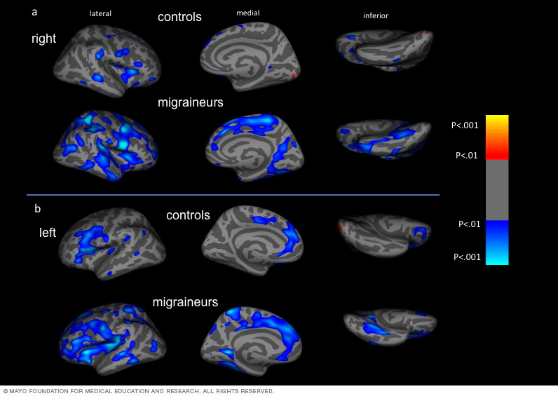 Atypical age-related cortical thinning in migraine patients is pictured.