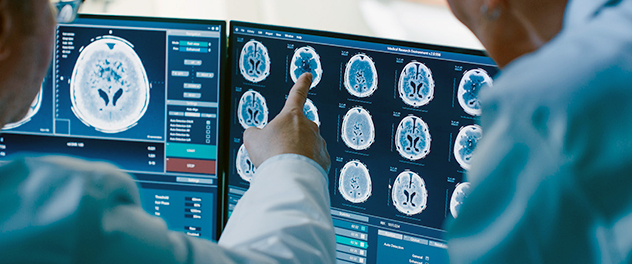 Brain scans from the Department of Neurology at Mayo Clinic focusing on movement disorders and Parkinson's disease research.