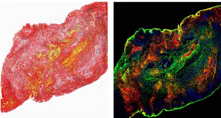Confocal images showing acute ischemic stroke clot.