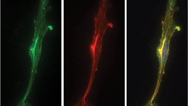The NKCC1 ion cotransporter, a channel highly expressed in brain cancer cells, is found to affect the cytoskeleton in such a way that allows cancer cells to be highly migratory.