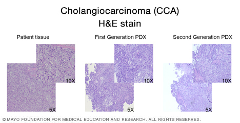 Histopathological confirmation of cholangiocarcinoma (CCA)