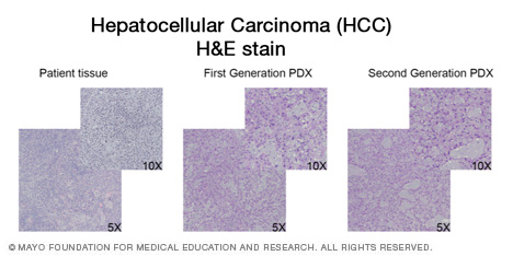 Histopathological confirmation of hepatocellular carcinoma (HCC)