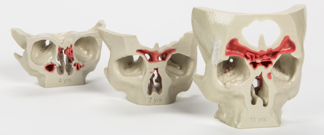 3D models of sinuses