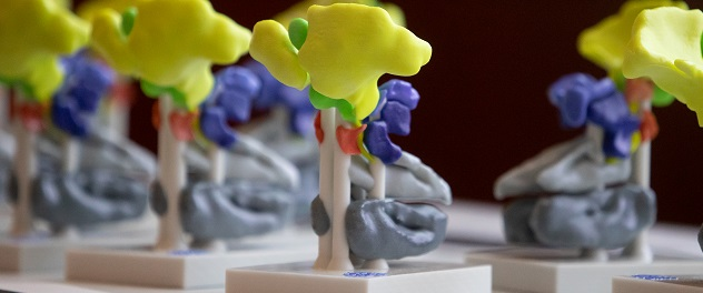 3D model of sinuses