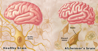 a brief summary of alzheimers disease an illness of the brain Alzheimer's disease (ad), also referred to simply as alzheimer's, is a chronic neurodegenerative disease that usually starts slowly and worsens over time [1] [2] it is the cause of 60–70% of cases of dementia.