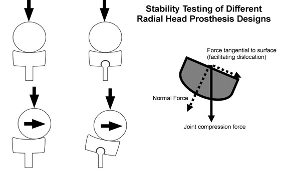 Stability Testing of Different Radial Head Prosthesis Designs