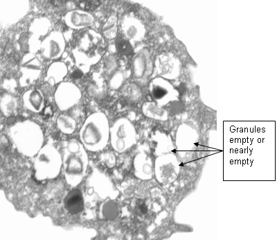 An eosinophil incubated with 100 micrograms/ml of an Alternaria extract for 4 hours.