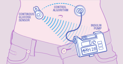 Illustration of how an artificial pancreas functions