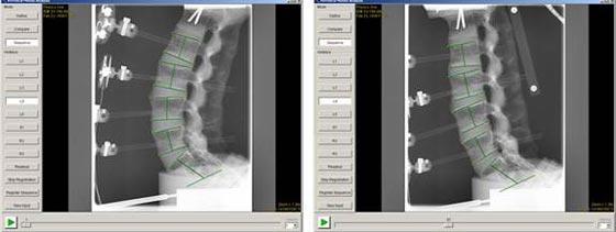 Automated software for vertebral kinematics quantification.