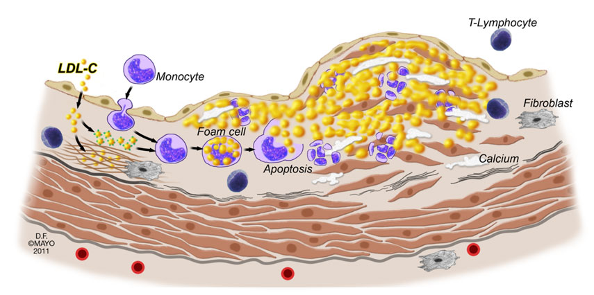 candidate genes related to atherosclerosis This module is highly highly related to atherosclerosis in the ia and this module enriched for immune-related genes, in particular those was highly enriched for genes in activated macrophages of the monocyte/macrophage lineage.