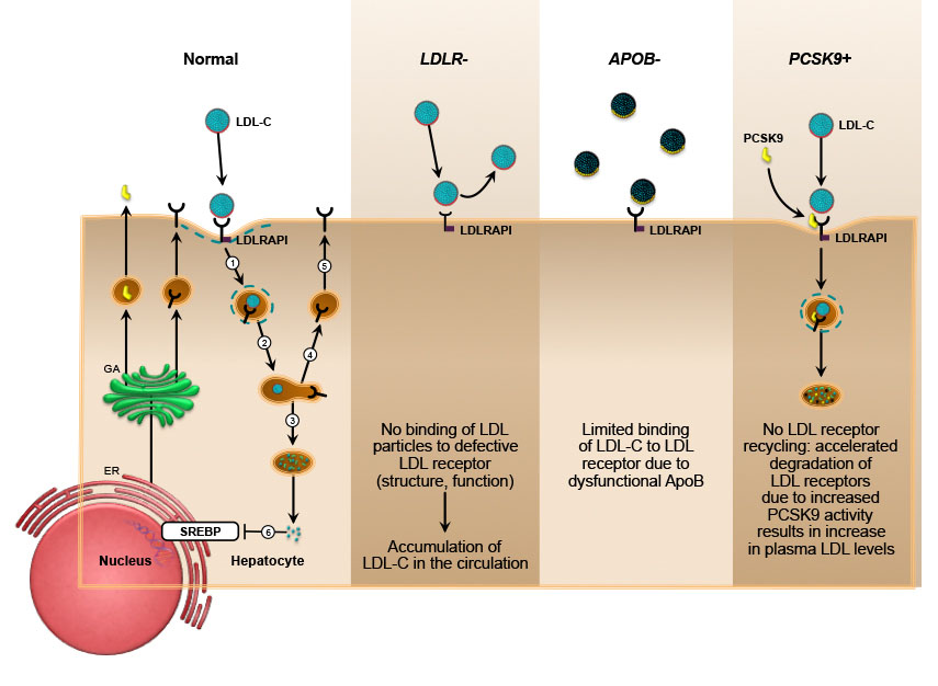 familial hypercholesterolemia inheritance Is high cholesterol hereditary familial hypercholesterolemia is a genetic disorder that causes individuals to have higher levels of ldl, which are bad cholesterol.