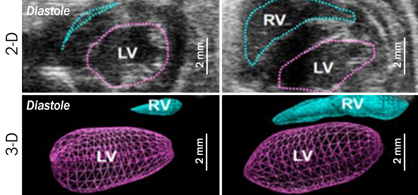 Echocardiography of mouse heart morphology