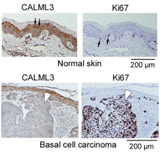 CALML3 localization in normal epidermis and invasive carcinoma