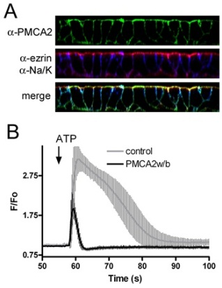 Stable expression and function of PMCA2w/b in MDCK cells