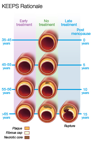 Cross-section comparison of post-menopausal blood vessel obstruction, with and without treatment.