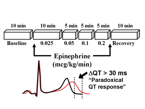 Catecholamine provocation testing in the evaluation of congenital long QT syndrome