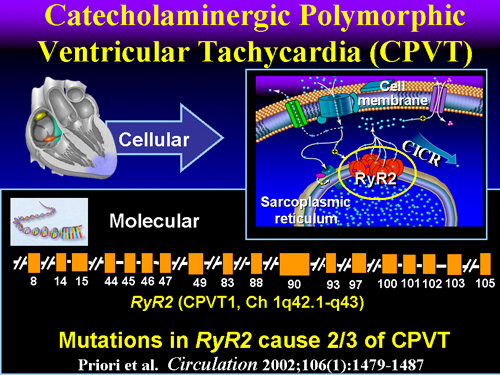 Catecholaminergic Polymorphic Ventricular Tachycardia (CPVT)