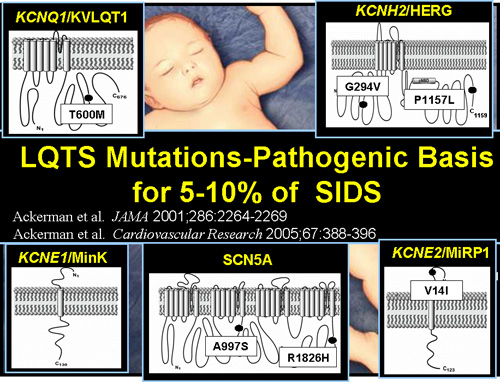 LQTS Mutations-Pathogenic Basis for 5-10% of SIDS
