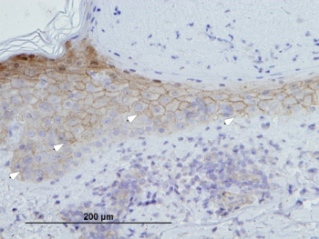 Immunohistochemical staining for calmodulin-like protein on section of healing wound in human skin