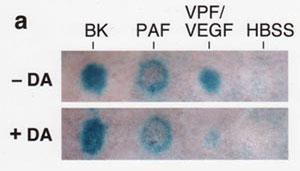 The effect of dopamine on vascular permeability as induced by bradykinin (BK), platelet activating factor (PAF), and VPF/VEGF.