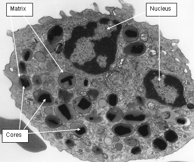 Electron dense granule cores and the lucent granule matrix surrounding the cores in an eosinophil isolated from the blood of a healthy human.