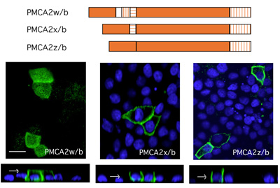 Alternative splicing affects the membrane localization of the plasma membrane calcium pump (PMCA) isoform 2b.