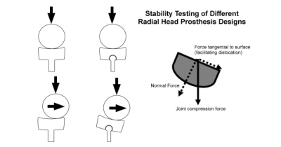 Opposite effects of eccentric loads or subluxation on monopolar and bipolar radial heads