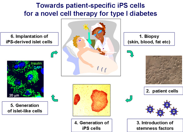 Towards patient-specific iPS cells for a novel cell therapy for type I diabetes