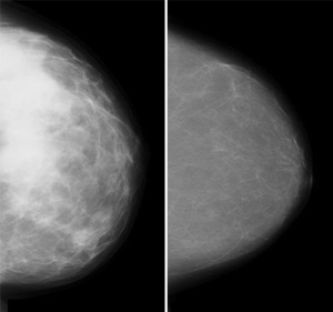 Images showing a fatty breast and a dense breast.