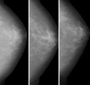 Images showing a series of mammograms taken over time from the same woman.